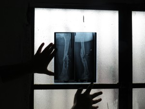 The same refugee shows an x-ray of her left thigh. She has not received any medical care since arriving in Lebanon